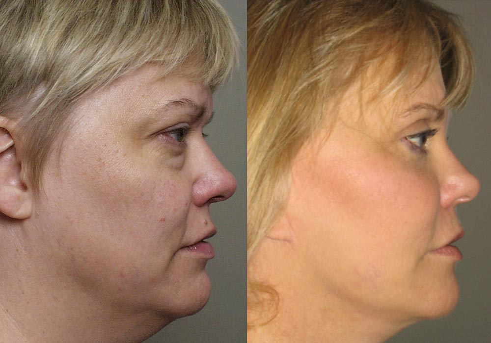 Facelift Patient 6 | Guyette Facial & Oral Surgery, Scottsdale, AZ