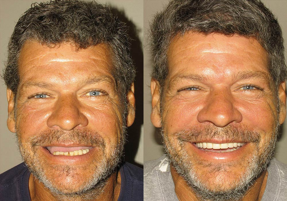 All-on-4 Photo Patient 7 | Guyette Facial & Oral Surgery, Scottsdale, AZ