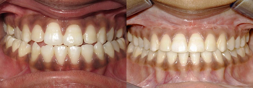 Corrective Jaw Surgery Photo Patient 1 | Guyette Facial & Oral Surgery, Scottsdale, AZ