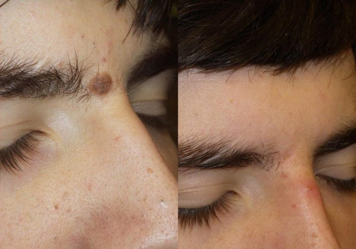 Mole Removal Patient 1 | Guyette Facial & Oral Surgery, Scottsdale, AZ