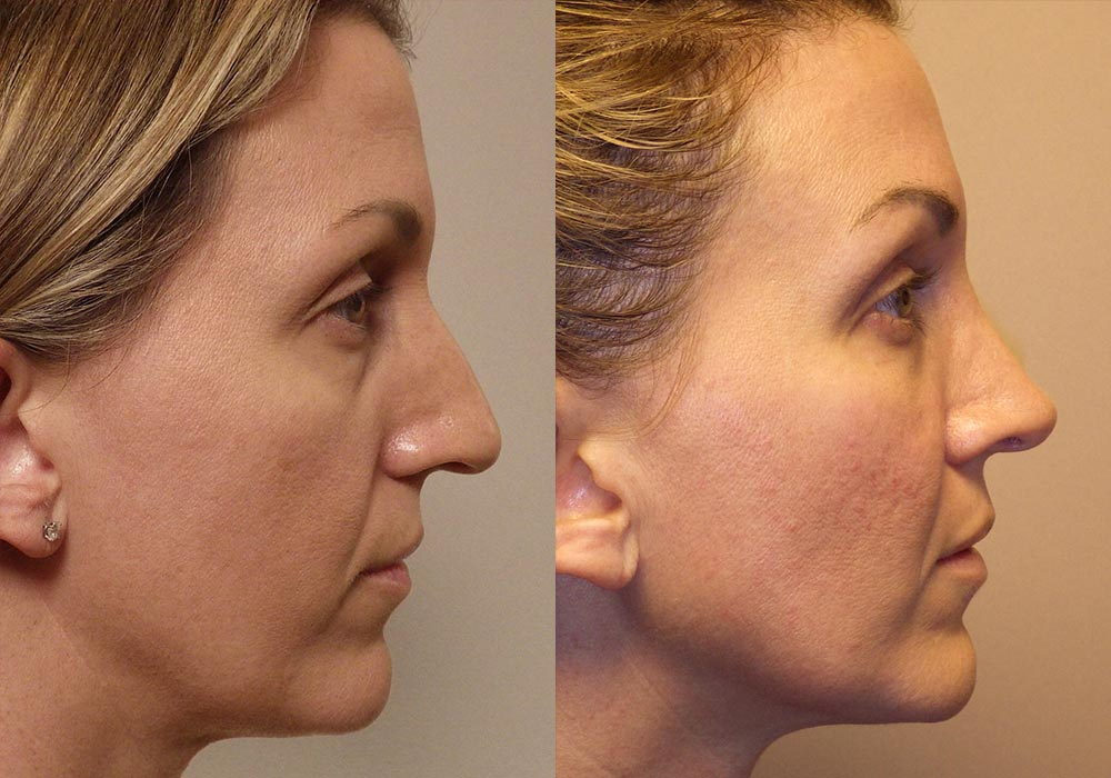 Rhinoplasty Patient 7 | Guyette Facial & Oral Surgery, Scottsdale, AZ