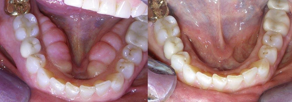 Tori Removal Photo Patient 2 | Guyette Facial & Oral Surgery, Scottsdale, AZ